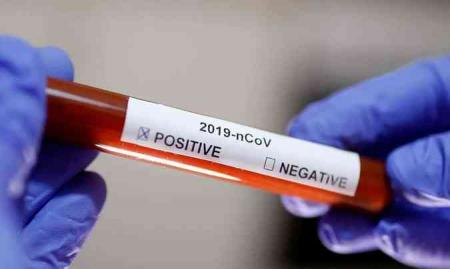 Município de Jóia confirma mais dois casos de covid-19